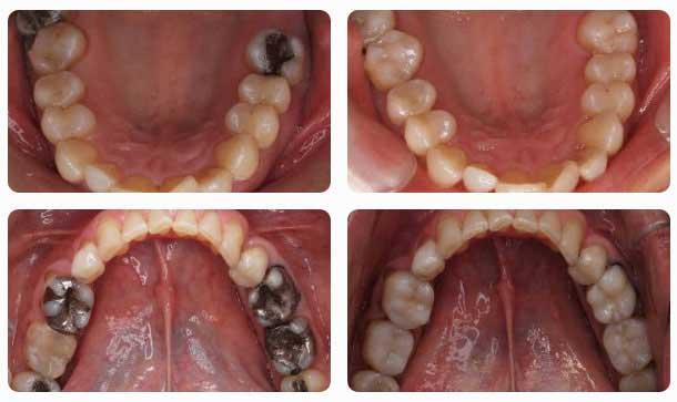 odontologia_conservadora